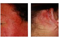 毛染めによる皮膚障害の勉強会
